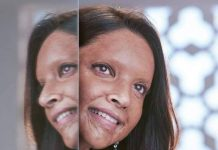 DEEPIKA PADUKONE TO TRANSFORM INTO ACID ATTACK SURVIOR FOR UPCOMING FILM 'CHHAPAAK'